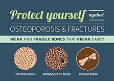 osteoporosis-info